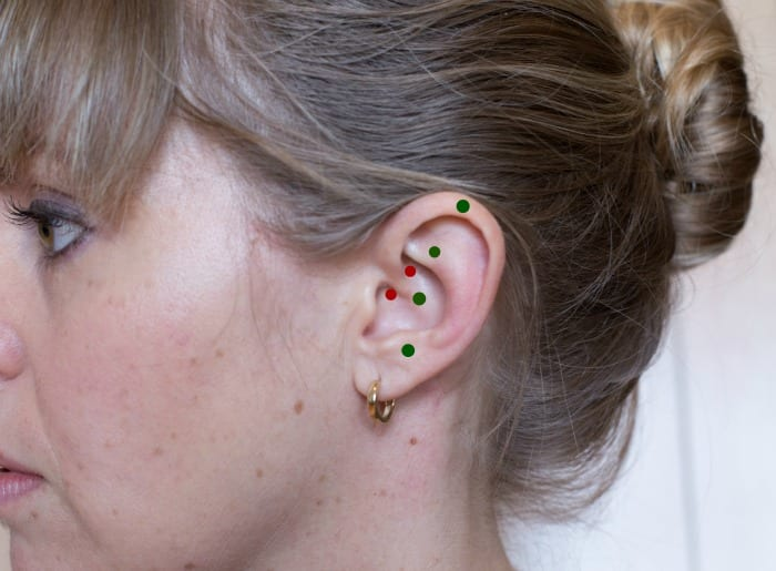 The red dots indicate the points stimulated by a daith piercing. The green dots represent the points an acupuncturist might use to treat migraine headaches.
