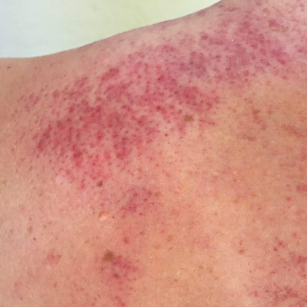 Image of skin after Gau Sha