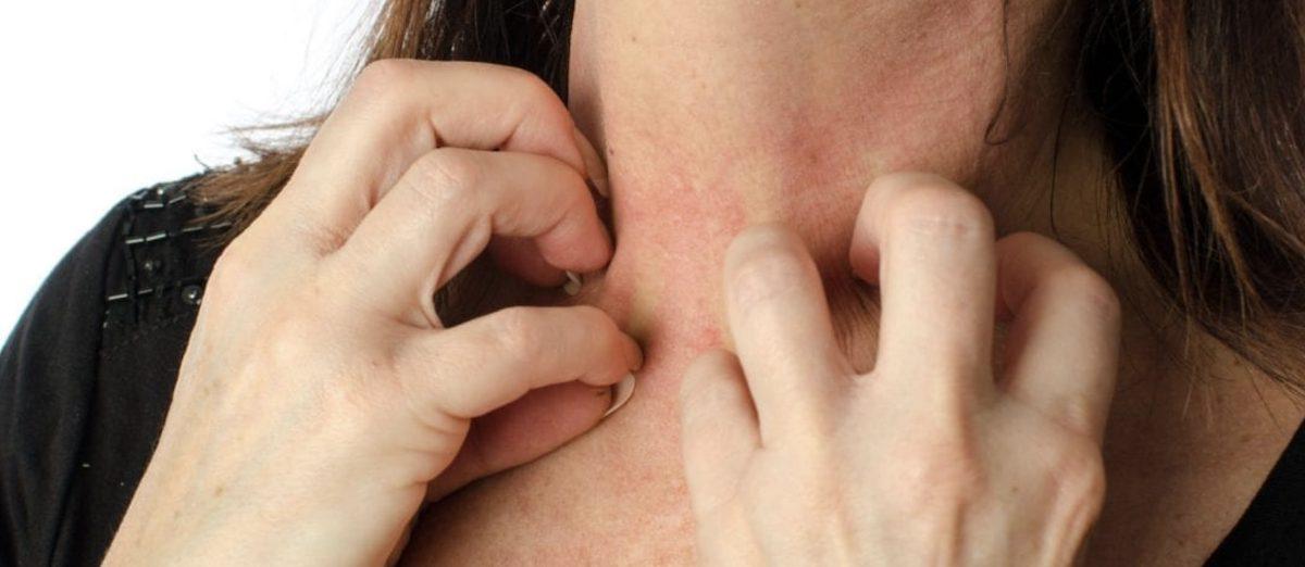 Allergic To Oils